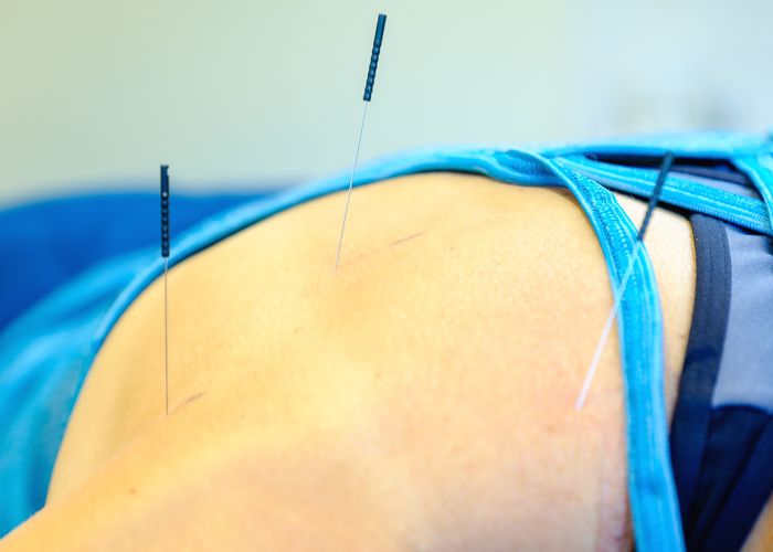 Sports accupuncture Cheltenham